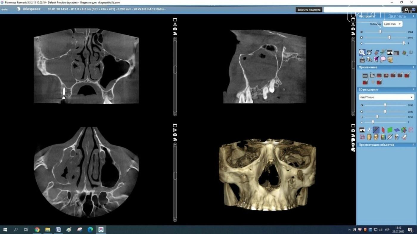 Де новоград-волинцям провести якісну щелепно-лицьову діагностику, фото-5