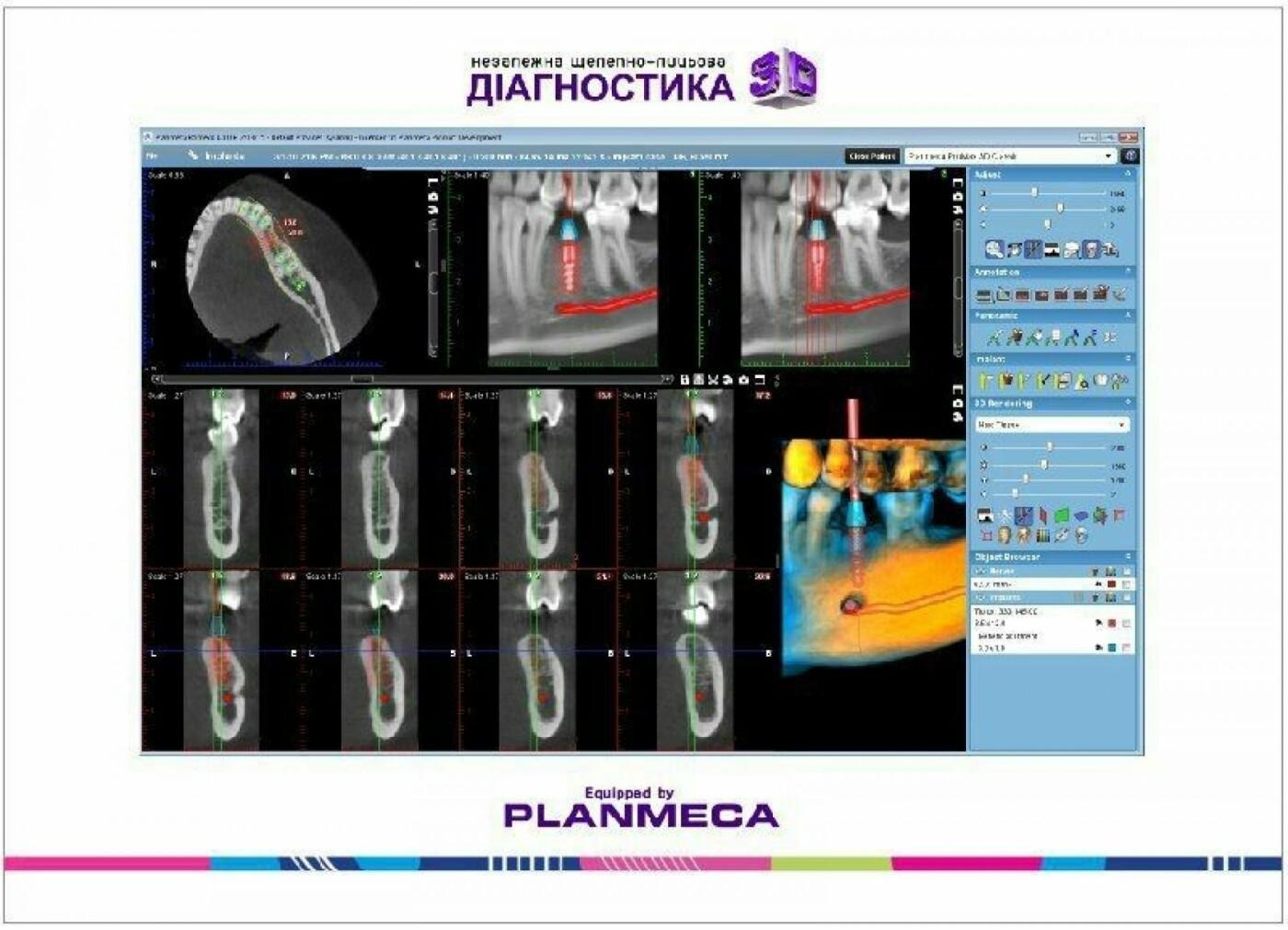 Де новоград-волинцям провести якісну щелепно-лицьову діагностику, фото-8