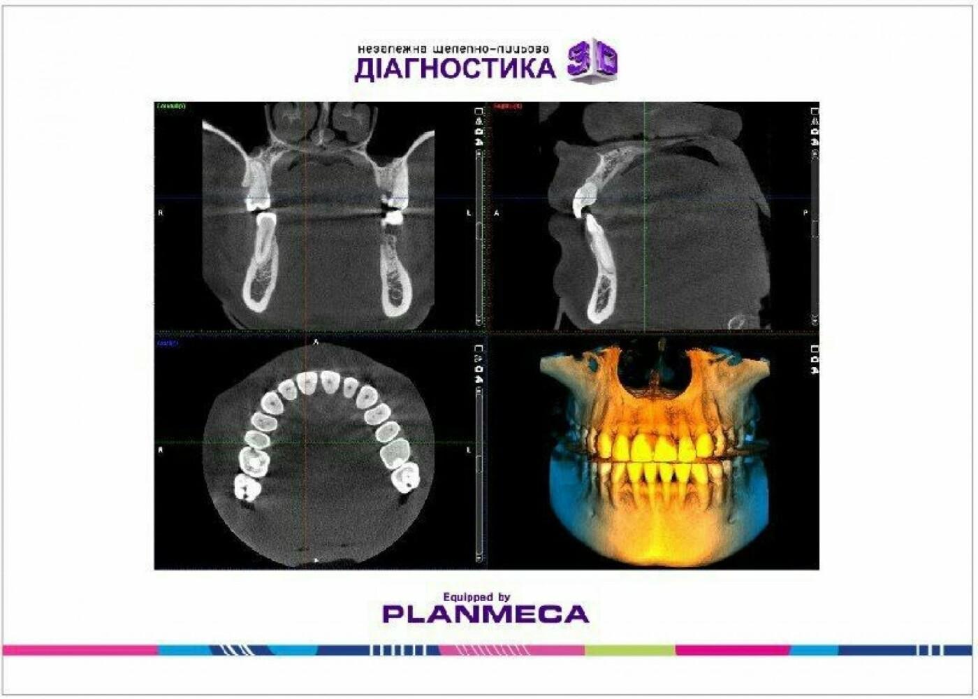 Де новоград-волинцям провести якісну щелепно-лицьову діагностику, фото-9